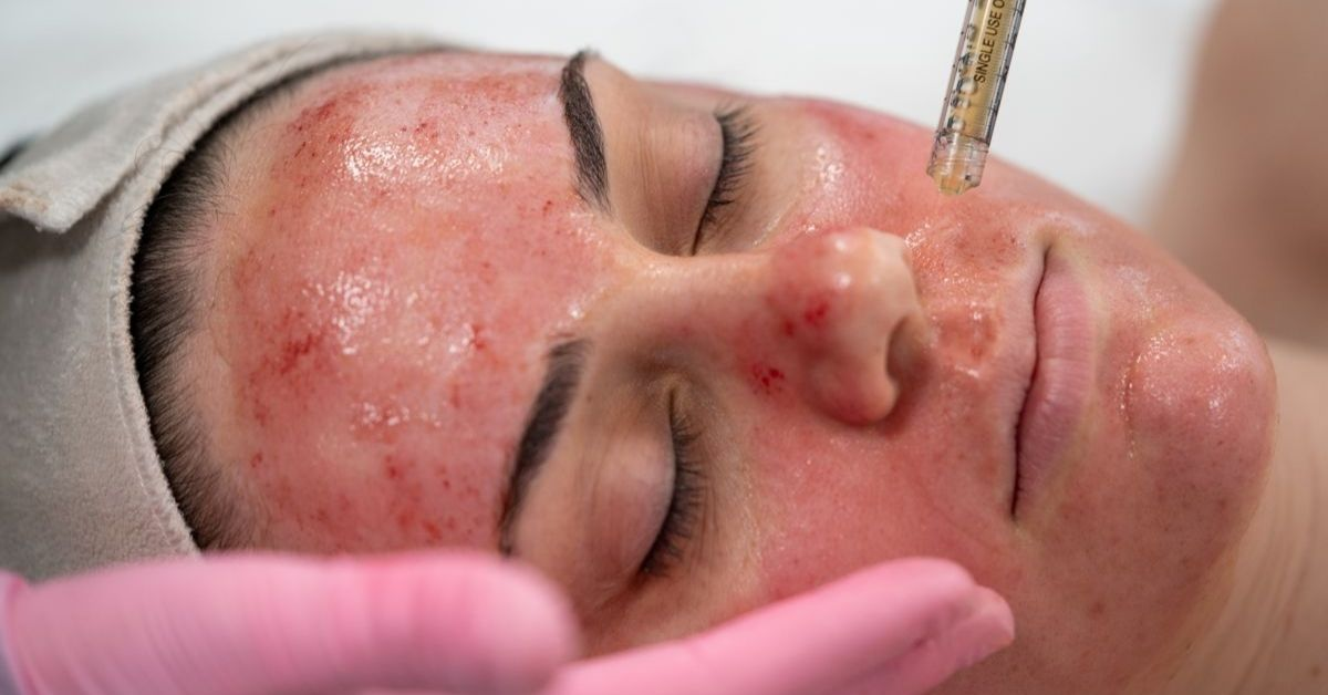 Vampire Facial aka Platelet-Rich Plasma Facials are anti aging skin treatments