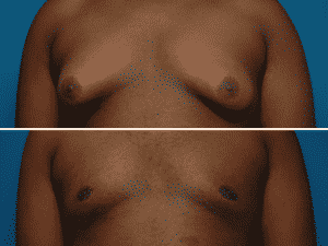 Images of male breast tissue before and after surgical treatment for Gynecomastia