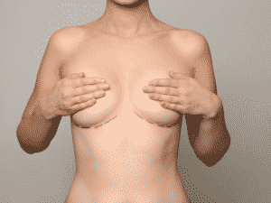 Woman with surgical incision markings under her breasts for breast implants